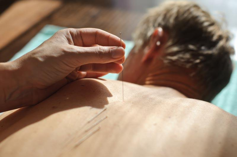 acupuncture treatment McHenry IL