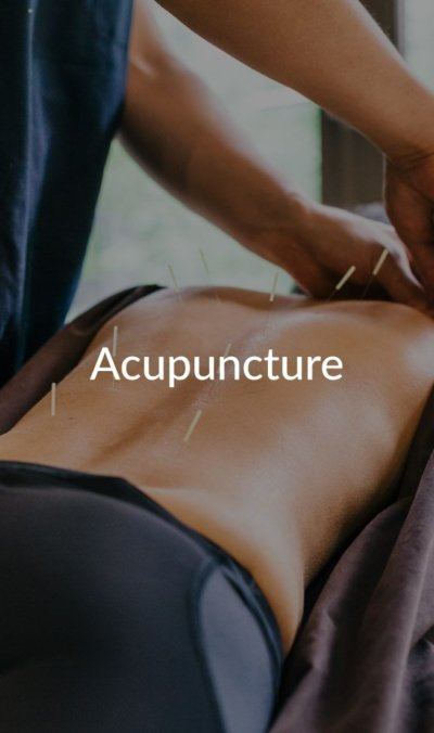 acupuncture at Natural Therapy Wellness Center in McHenry IL